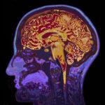 Colorful MRI Image of Brain